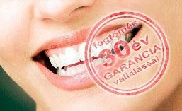 fogtömés altatásos fogászaton garanciával