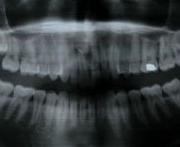 Röntgenvizsgálat